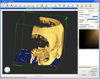 MEDVIS 3D Medical Informatics RISC Software GmbH